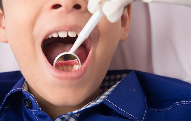 子供の虫歯の特徴